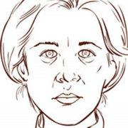 Mimetherapei aangezichtsverlamming logopedie Oisterwijk